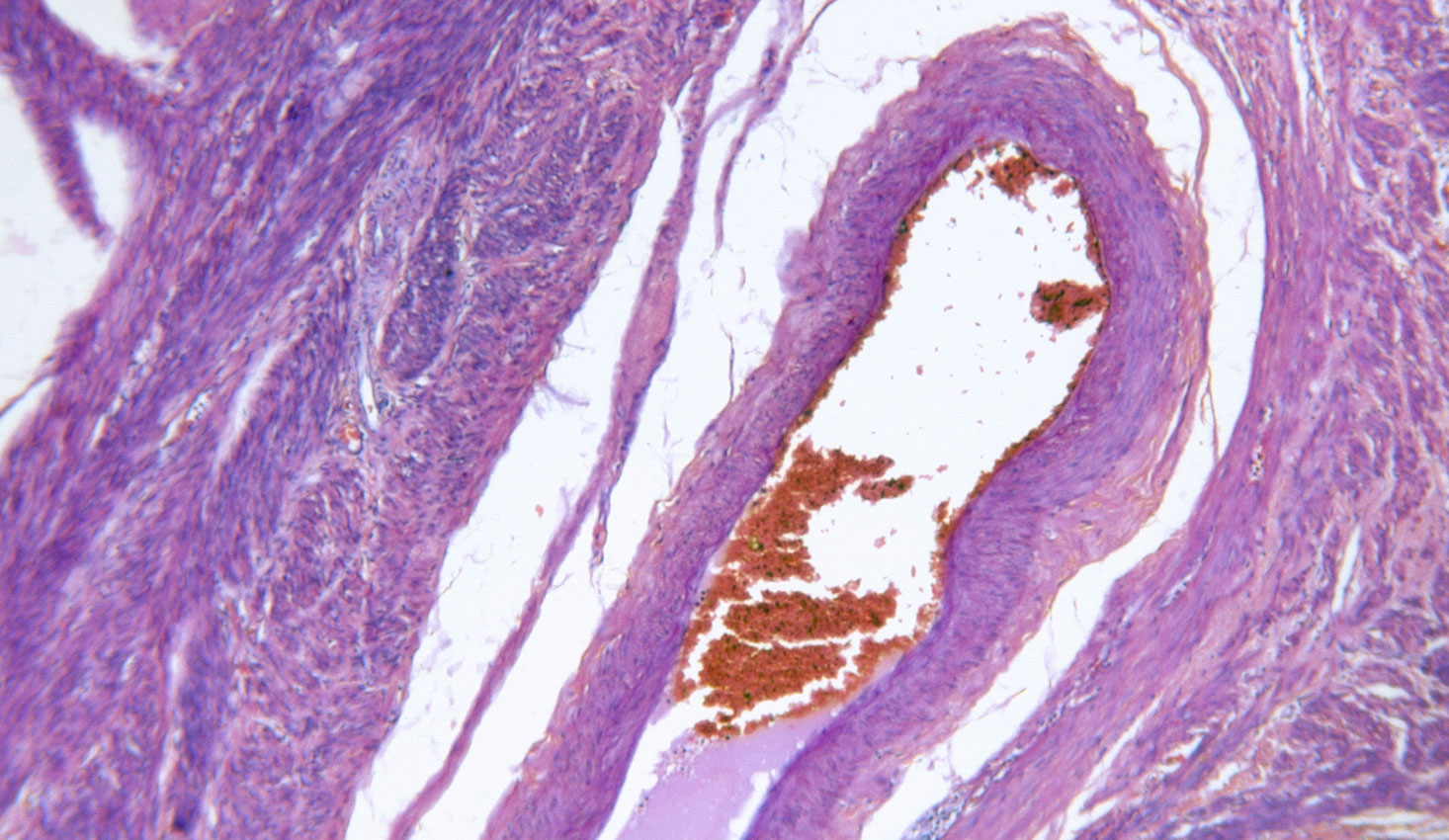 Endometrial Ablation Miami, FL | Dr. Sidiq Aldabbagh, MD - OBGYN
